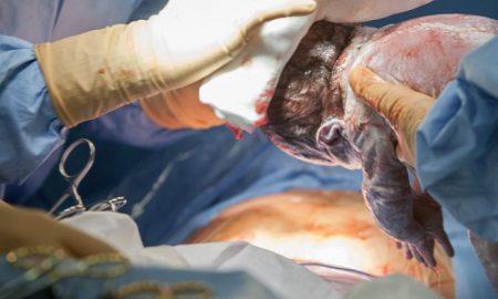santé-césarienne-gynécologie-médecine-OMS-Unicef