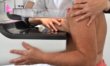 mammographie-cancer-sein